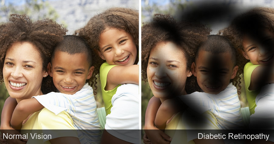 Family photo as seen with normal vision compared to visual distortions caused by diabetic retinopathy